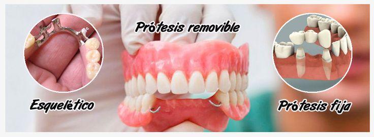#Prótesis dental. Precio y comparación de los tipos de prótesis