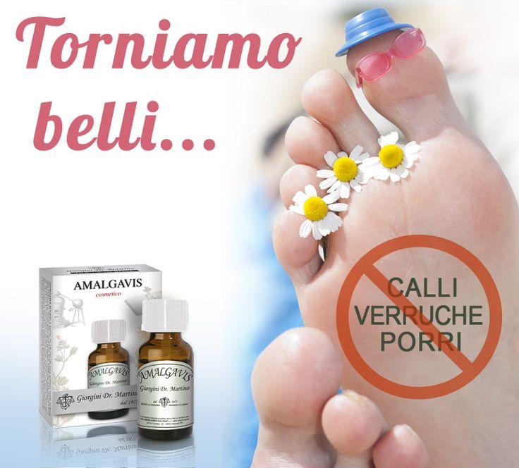 """AMALGAVIS Dr. Giorgini - Con l'arrivo del caldo anche i nostri piedi vengono allo scoperto ed è quindi più facile che saltino all'occhio piccoli calli o """"occhi di pernice"""", magari trascurati durante la stagione invernale. AMALGAVIS del Dr. Giorgini è un cosmetico naturale senza parabeni, utile per l'igiene e la bellezza della pelle dei piedi. http://www.drgiorgini.it/index.php/serhcos0331-drg-amalgavis-10-ml #piedi #calli #verruche #cosmetico #naturale"""