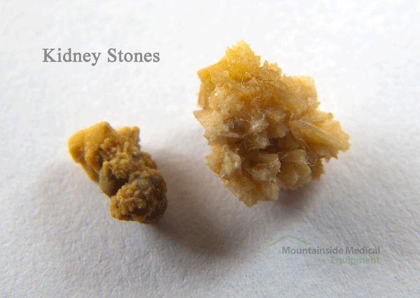 Как появляются камни в почках и желчном пузыре? |