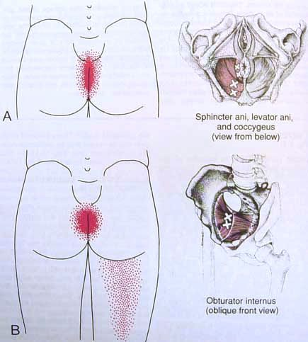 Sphincter Ani--levator Ani--coccygeus--obturator in Trigger Point Diagram