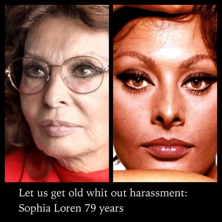 Sophia Loren #aging under the knife
