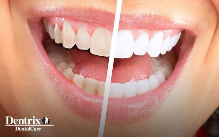 Teeth Whitening in NW Calgary | Dentrix Dental Car…