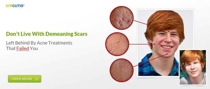 Acne Scar Removal - Acne Scarring Treatments