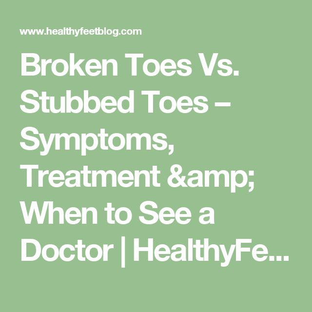 Broken Toes Vs. Stubbed Toes – Symptoms, Treatment & When to See a Doctor | HealthyFeetBlog.com
