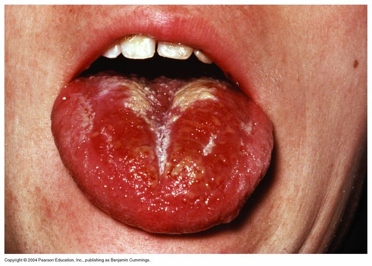 Scarlet Fever Strep throat caused by erythrogenic toxin producing strains of Streptococcus pyogenes results in scarlet fever.  Erythrogenic toxin production is caused by a phage.  Symptoms include a red rash, high fever, red enlarged tongue.  Penicillin is the drug of choice.  Immunity is developed to the toxin not the organism.