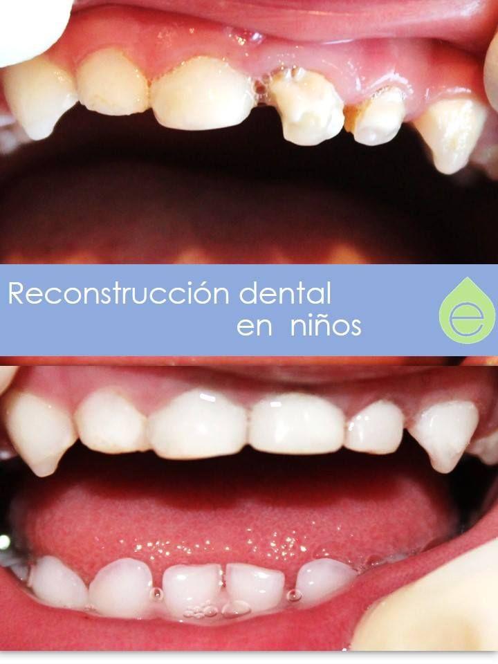 Reconstrucción dental en niños