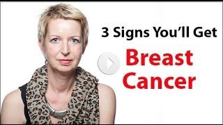 3 Signs You'll Get Breast Cancer - Dr. Russell Blaylock.  Explosion of breast cancer, this is a free informational video presentation revealing the three signs you could develop breast cancer.
