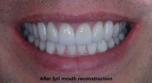 you can have the third set of teeth