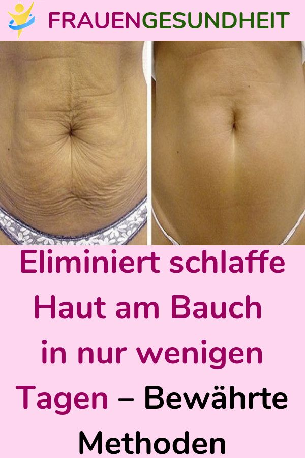 Eliminates sagging skin on the abdomen in just a few days - Proven methods