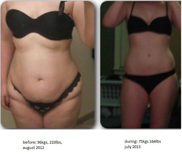 do bulimics gain or lose weight