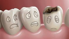 How to use home remedies for cavities and tooth decay? Tooth-related issues are always painful to manage, however cavities are the most noticeably bad...