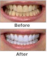 Отбеливание зубов Pen мягкую кисть отбеливания зубов продукты Dental Care Device белая улыбка ручка Отбеливание зубов Pen отбелить Зубные Инструменты 10шт /много
