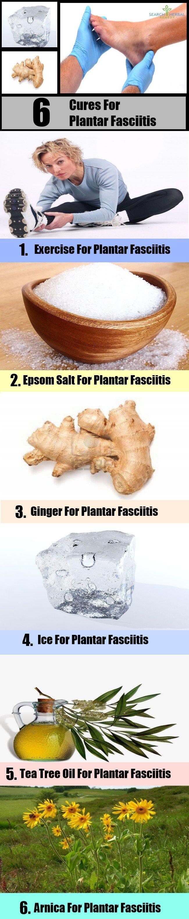 Plantar Fasciitis3