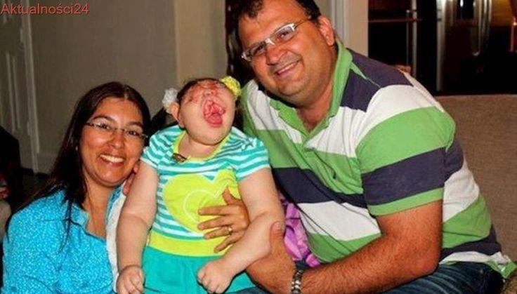 """Urodziła się bez twarzy, lekarze nie dawali jej szans. """"To miłość trzyma ją przy życiu"""""""