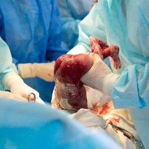Mediziner raten Frauen, die bereits eine oder mehrere Kaiserschnittentbindungen hinter sich haben, oft von einer spontanen Geburt ab.