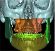 Maxilolarioja Blog: ¿Que es la Cirugía Oral y Maxilofacial?