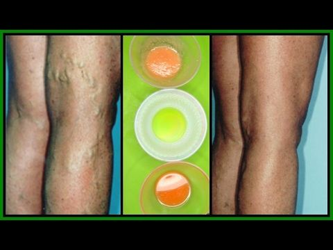 GET RID OF VARICOSE VEINS WITH 3 POWERFUL EFFECTIVE TREATMENTS |100% WORKS | Khichi Beauty - YouTube