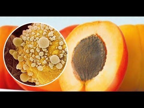 "Apricot Seeds CANCER Cure? ALL You NEED to Know about Ability to Kill Cancer Cells of Vitamin B17 - ✅WATCH VIDEO http://alternativecancer.solutions/apricot-seeds-cancer-cure-all-you-need-to-know-about-ability-to-kill-cancer-cells-of-vitamin-b17/   	  Apricot Seed Benefits of Cancer Cell Death? Everything you need to know about the benefits of apricot kernels. Natural ""Laetrile"" Bitter apricot pits naturally contain a chemical called amygdalin, often called la"