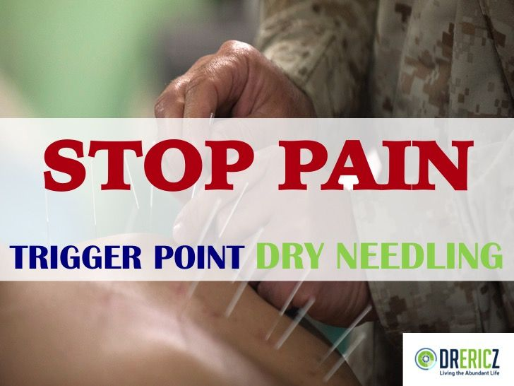 Trigger point dry needling is a natural pain treatment that is very similar to acupuncture. Can it help YOU? Read on to find out...
