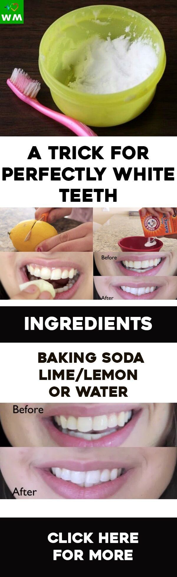 There are DIY ways to get perfect, white teeth. What is more, you can do it at your home and it takes only a few minutes of your time.
