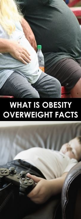 #overweight #obesity #facts #what #isWhat Is Obesity? Overweight Facts What Is O…