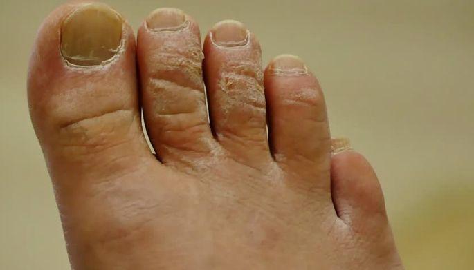 كيفية علاج فطريات القدم بالخل والملح