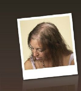 hair loss has multiple causes Ms treatment and hair loss has multiple sclerosis got you pulling who among us taking tysabri has experienced more hair loss than average have you told your.