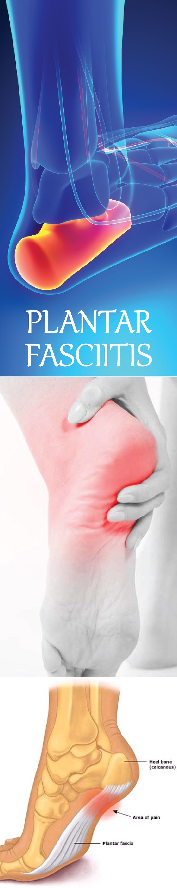 5 Ways to Prevent Plantar Fasciitis                                                                                                                                                                                 More