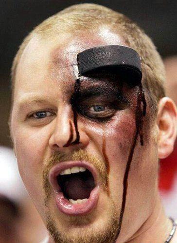 hockey is dangerous !!!