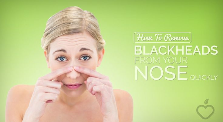 Blackheads are easy to get for both adults and tee…