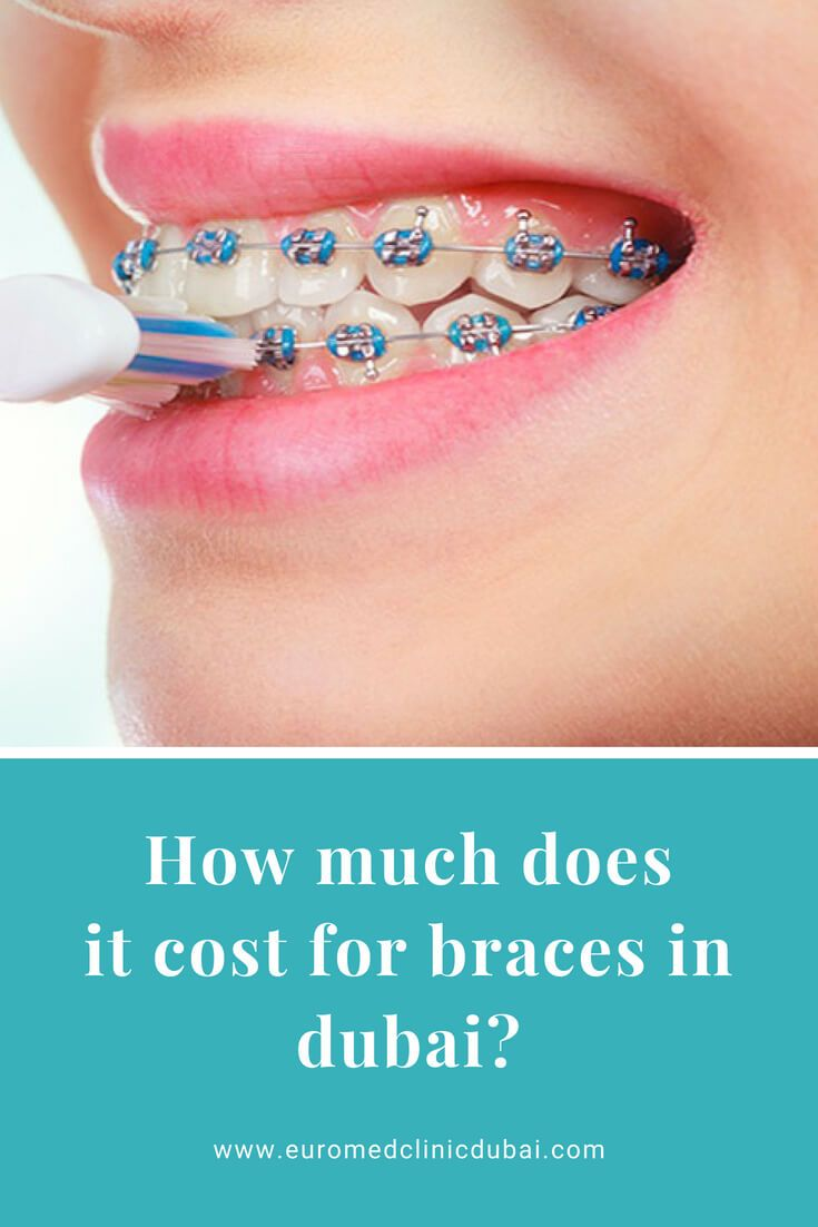Do you want to get braces for front teeth but you need to