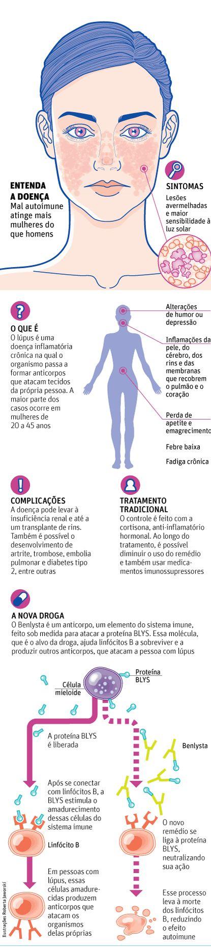 Brasil aprova nova droga biológica contra o lúpus - 22/07/2013 - Equilíbrio e Saúde - Folha de S.Paulo