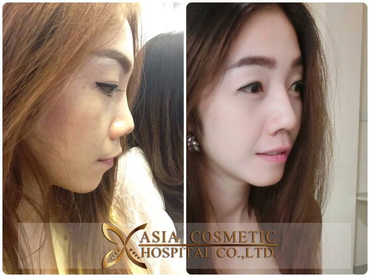 How much does #Rhinoplasty cost in #Singapore? The cost of doing rhinoplasty can vary according to 2 major factors: The number of procedures