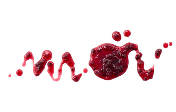 If it's a thick jam-colored red with large clots… http://www.prevention.com/health/color-of-your-period-blood-and-health/slide/4