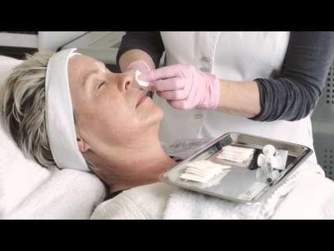 Cosmetics & More - Faltenunterspritzung mit Hyaluronsäure http://cosmetics-reviews.ru/2017/11/11/cosmetics-more-faltenunterspritzung-mit-hyaluronsaure/