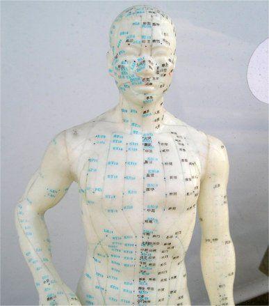 Akupunktúrával az egészségért (freeimages.com)