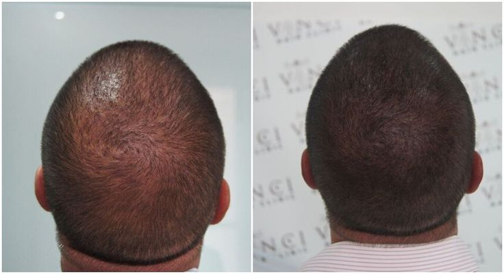Micro Scalp Pigmentation is a sophisticated medical grade pigmentation treatment that simulates the look of shaved hair over the scalp. MSP can be used to treat typical male pattern baldness, but also alternative hair loss conditions such as alopecia areata, and regardless of how much hair has been lost can restore the look of a full shaved head of hair. #hairrestoration #alopecia #balding #hairtattoo #micropigmentation #pigmentation #croppedhair #holland #amsterdam