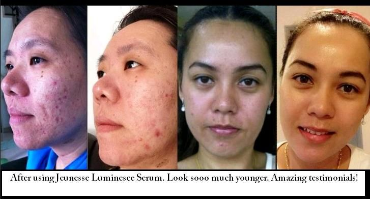 Luminesce dissolves acne scars!! http://gorgeousagain.jeunesseglobal.com/