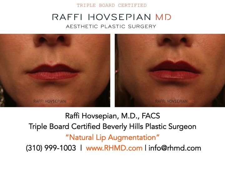 "Before and After of Dr. Raffi Hovsepian's ""Natural Lip Augmentation"" using Juvederm…. ""Because No One Has To Know!""  Please say NO to duck Lips. For more info: www.RHMD.com 
