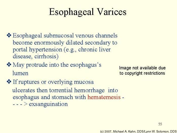 esophageal varices Learn about bleeding esophageal varices, find a doctor, complications, outcomes, recovery and follow-up care for bleeding esophageal varices.