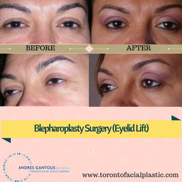 #Blepharoplasty #Eyelidsurgery #eyelidlift