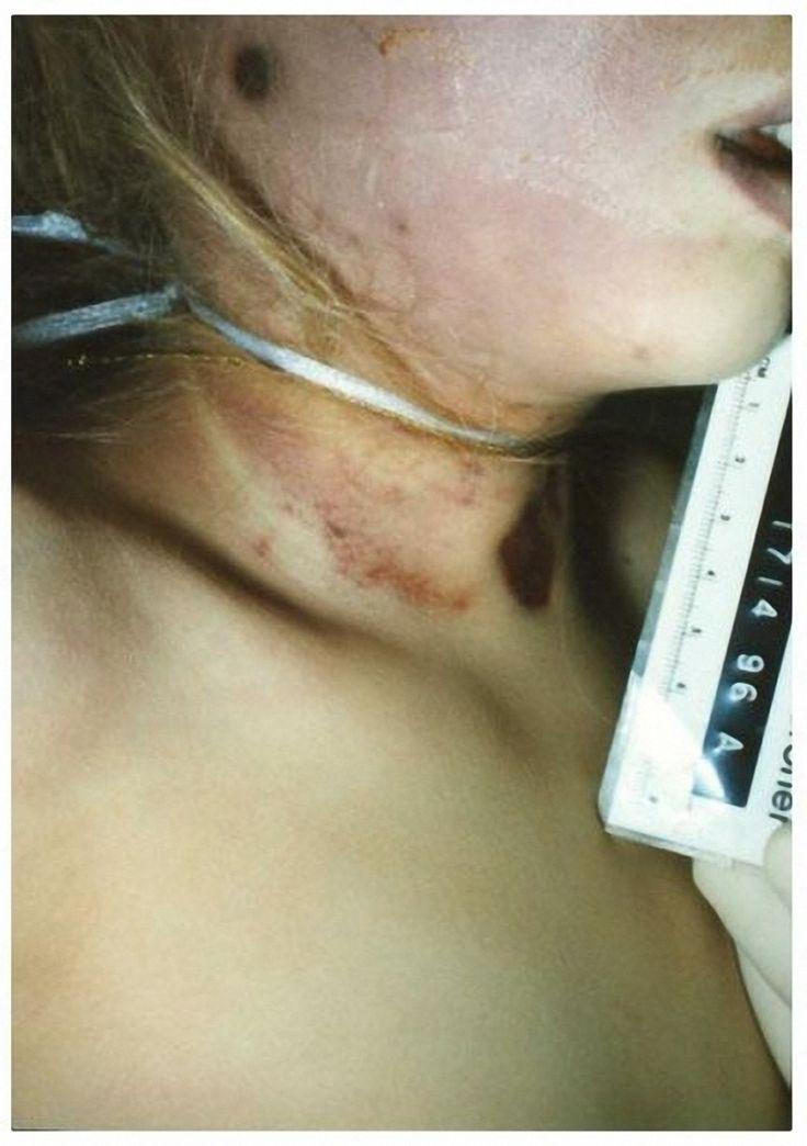 jonbenet ramsey autopsy   JonBenet Ramsey