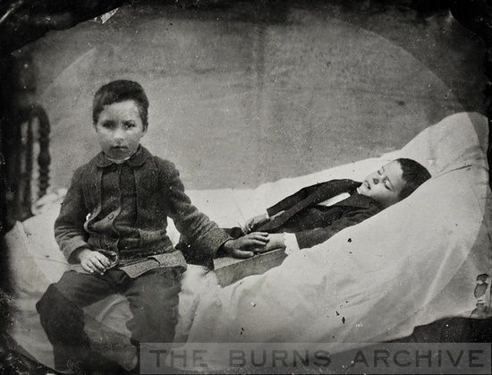I love that this post mortem photograph is so straightforward – no attempt has been made to pretty the situation up at all. The way the other boy (presumably his brother?) has his hand over that of the deceased child is so touching.