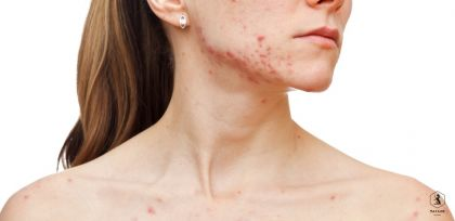 Skincare Blog - The Truth About Hormonal Acne