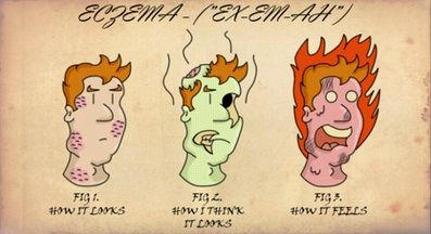 Eczema cartoon - how it feels, how you think it looks and how it really looks.