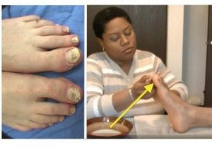 See How She Removed His Toe Fungus Without Expensive Medical Treatments