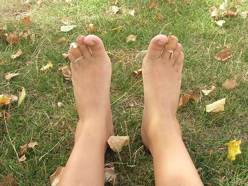¿Uñas de los pies amarillas?