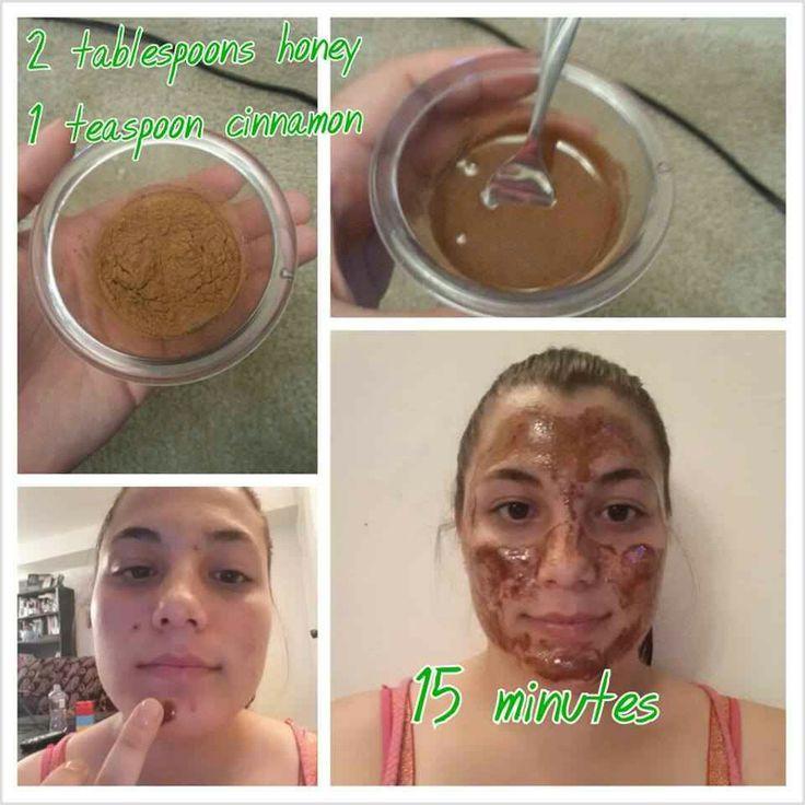 régime acné gluten quebec