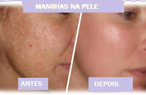 Como retirar manchas na pele?