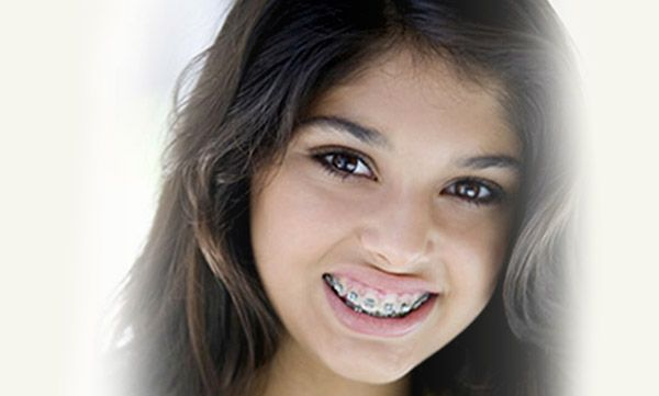 http://londonsquarede.livejournal.com/  Are You Wearing Retainers? Here's How To Care For It